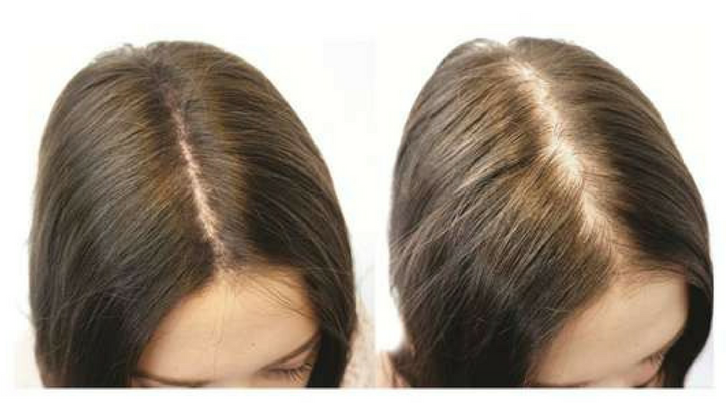 Clive Hair Clinics AUS - Hair Loss Treatment